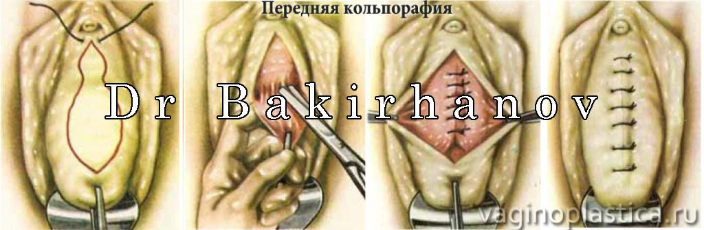 disbakterioz-vlagalisha-i-treshini-u-vhoda