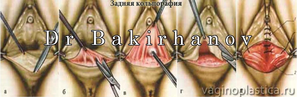 erotika-dlya-ibooks