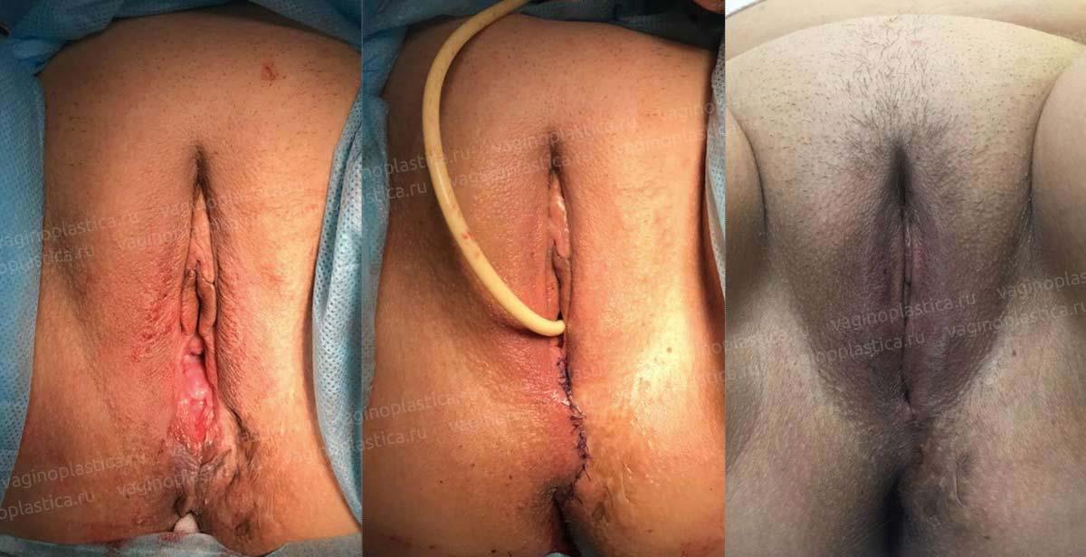 Сшивание половых губ медики видео, порно попки рыженьких